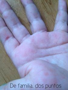 Lesiones en las manos y pies