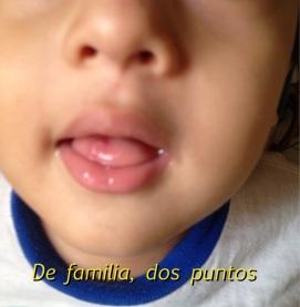 Lesiones en lengua e interior de la boca